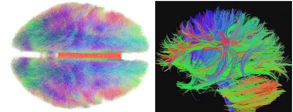 뇌 속 신경세포들의 연결 /사진=https://creativecommons.org/licenses/by-sa/4.0/deed.en