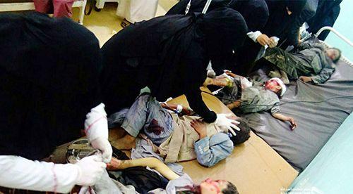 9일(현지시간) 오전 예멘 북부 사다 주(州)의 자흐얀 지역에서 어린이들이 탄 통학버스가 사우디아라비아군에 폭격당해 최소 50명이 사망하고 77여 명이 다쳤다고, 예멘 반군이 운영하는 알마시라 방송이 보도했다. /사진=자흐얀<예멘>EPA/후티 무브먼트, 연합뉴스
