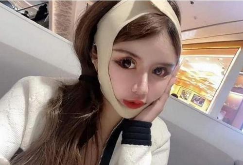 기억력과 시력을 잃었지만 성형 수술을 100 번이나 부르는 16 세 중국 소녀의 충격적인 비극